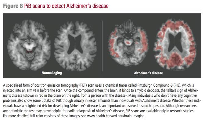 exploring aspects of the alzheimers disease essay (results page 6) view and download alzheimers disease essays examples also discover topics, titles, outlines, thesis statements, and conclusions for your alzheimers disease essay.